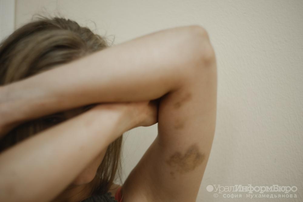 Курганского наркомана, искусавшего приятельницу , отпустили под подписку оневыезде