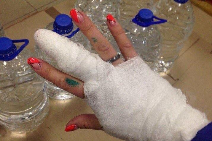 Девушка, пострадавшая от«нападения» дрона компании Дом.ру, обратилась вполицию