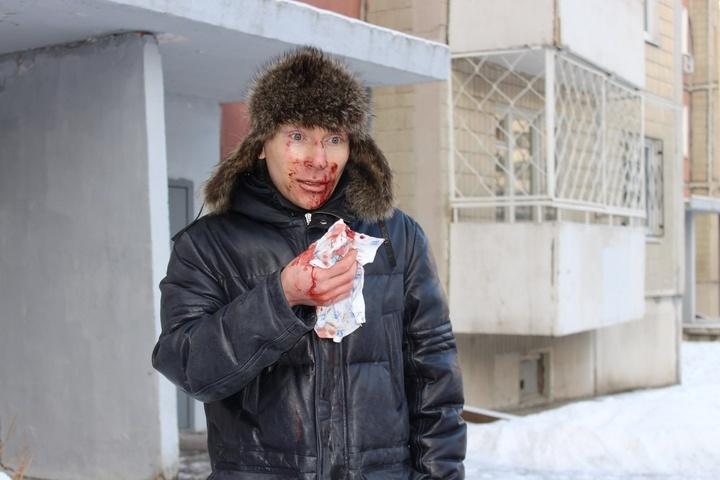 ВЕкатеринбурге неизвестные избили ассистента депутата Заксобрания